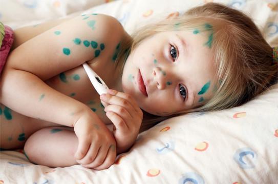 Bệnh thủy đậu ở trẻ em cần kiêng gì - Cách chữa thủy đậu nhanh nhất