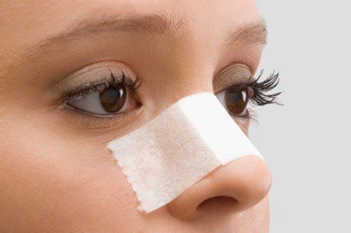 Vì sao phẫu thuật nâng mũi lại gây ra những biến chứng nguy hiểm?
