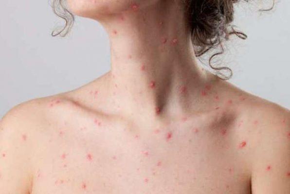 ĐÂY - Cách điều trị bệnh thủy đậu khỏi trong tích tắc không để lại sẹo