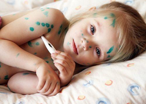 Bệnh thủy đậu ở trẻ em cần kiêng gì – Cách chữa thủy đậu nhanh nhất