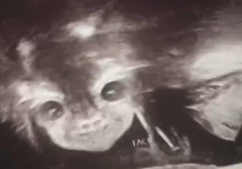Đi siêu âm thai nhi 24 tuần tuổi, người mẹ hết hồn khi thấy hình ảnh của con