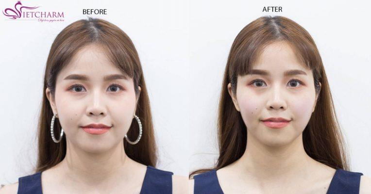 Gương mặt thon gọn chuẩn Vline nhờ công nghệ nâng cơ trẻ hóa da Multi Layer RF1