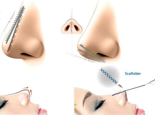 Nâng mũi không phẫu thuât sử dụng chỉ nâng mũi1