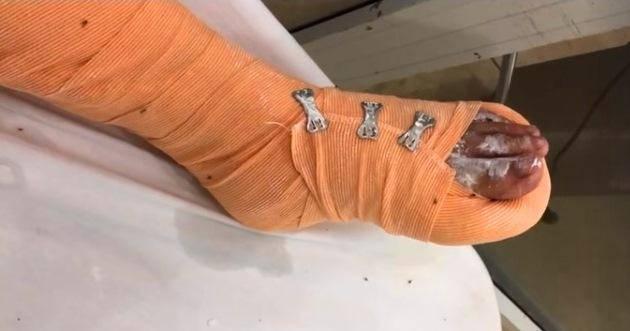 Ngón chân của cô gái bị bạn trai dùng dao đập gãy1