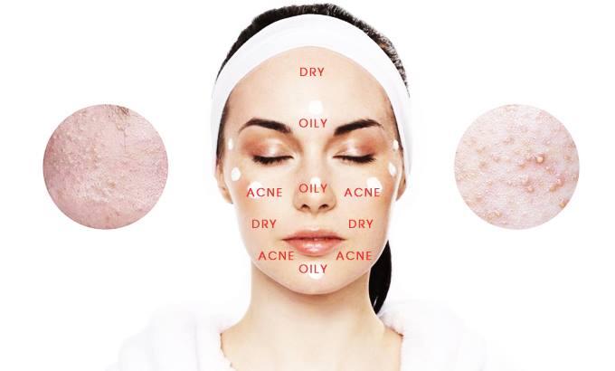 Da hỗn hợp không nhanh bị lão hóa như da thường và da khô1