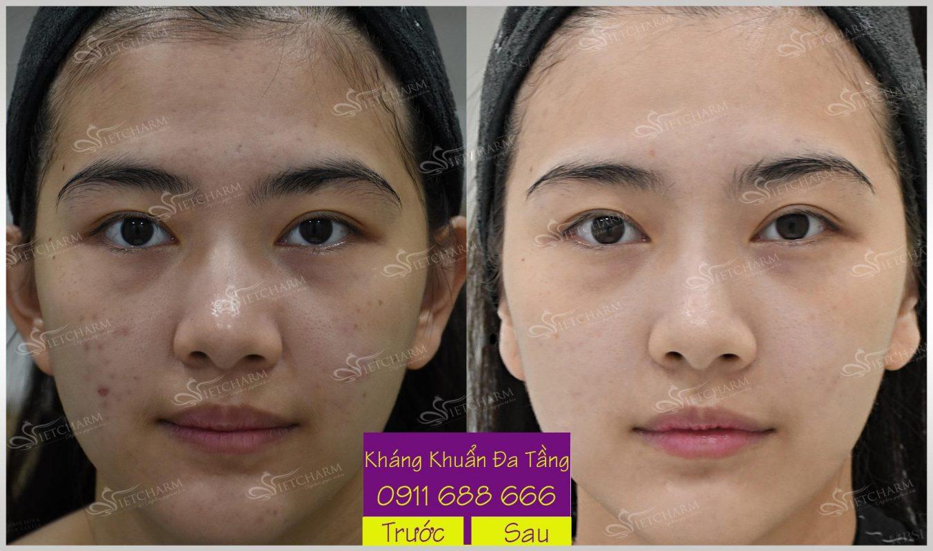 Da mặt hết thâm mụn sau khi trị mụn1