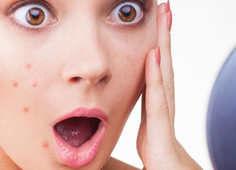 Dựa vào vị trí nổi mụn trên mặt có thể phát hiện nhiều dấu hiệu của bệnh1