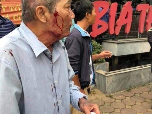 Cựu chiến binh 80 tuổi bị tài xế xe ôm đánh chảy máu đầu