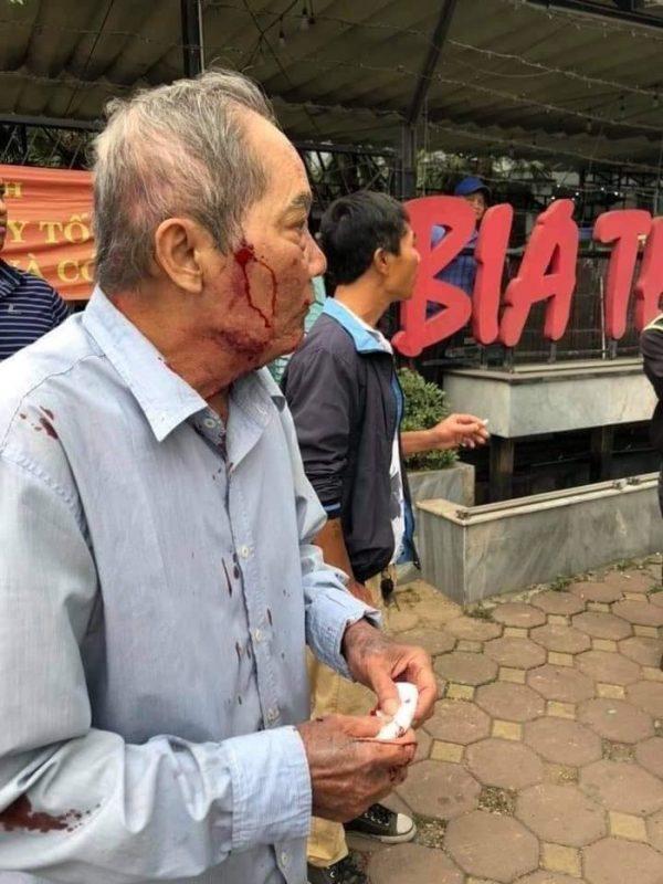 Ông cụ 80 tuổi bị tài xế xe ôm đánh chảy máu đầu1