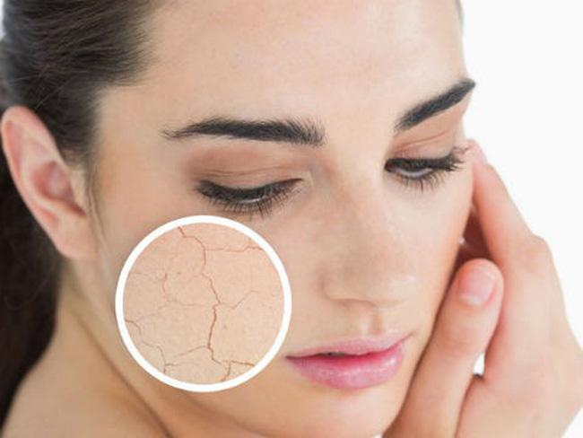Da khô dễ nổi mụn và bong tróc khiến bạn già trước tuổi1