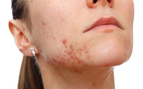 Vị trí nổi mụn ở vùng hàm dưới có thể do hệ thống bạch huyết bài độc hoạt động không tốt1