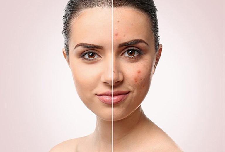 Mụn mọc ở mặt khiến cho làn da của bạn trở nên thâm sạm, kém sắc1
