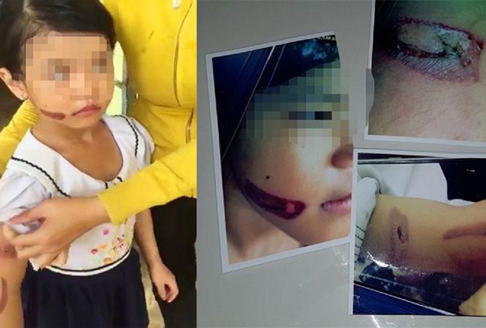 Người lớn chưa quyết liệt trong việc bảo vệ trẻ em trước những hành động bạo hành1