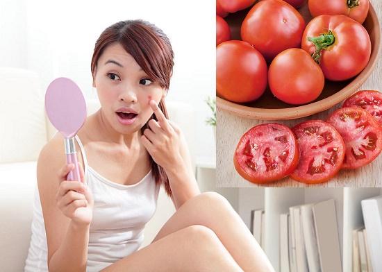 Trị mụn ở mặt nhanh chóng và hiệu quả với cà chua thái lát1