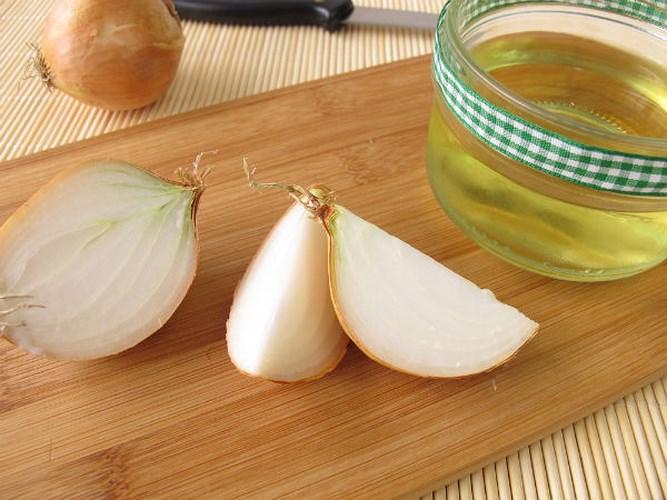 Kết hợp hành tây với dầu oliu là cách trị mụn trên trán hiệu quả1