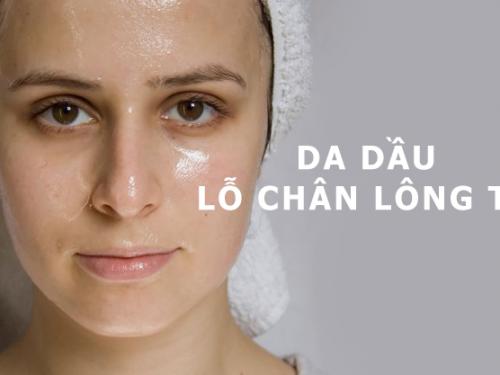 Phân biệt các loại da dầu – Cách chăm sóc da dầu tránh khỏi mụn