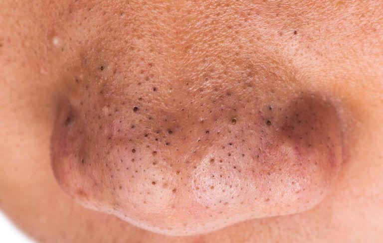 Mụn đầu đen tập trung nhiều ở mũi, trán và cằm1